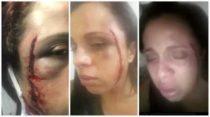 Lutador de Jiu Jitsu é acusado de invadir apartamento e espancar ex-mulher em Salvador